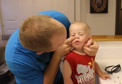 Wie entfernt man eine Erbse aus der Nase?